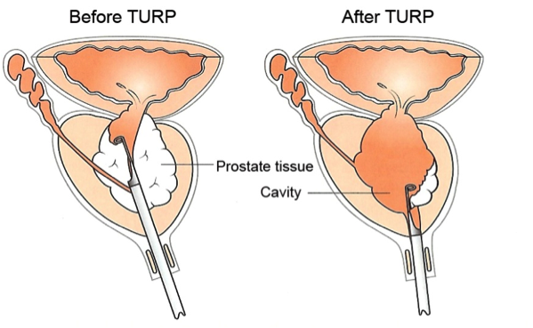 prostate laser surgery in ghaziabad